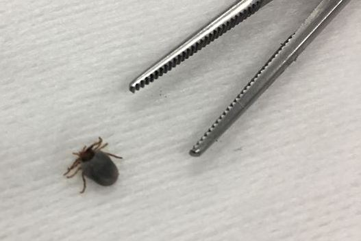 Paralysis tick and tweezers